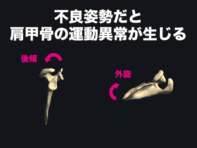 不良姿勢時の肩甲骨の動き